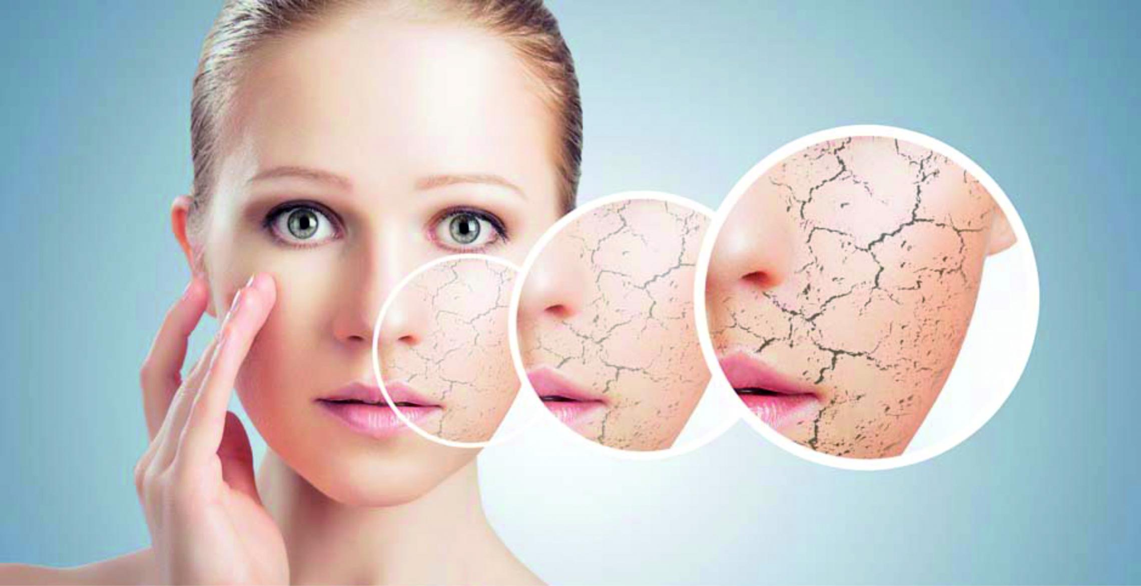 Проблемы сухости кожи и важность квалифицированного подхода при их решении | Мезотерапия и косметология в клинике Vitaura