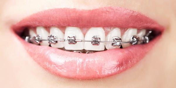 Этапы ортодонтического лечения